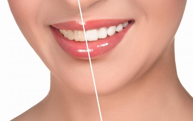 ¡Dientes blancos, sonrisa perfecta!