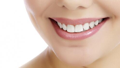 Limpieza + blanqueamiento dental LED