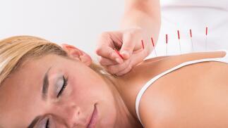 3 sesiones de acupuntura para dejar de fumar