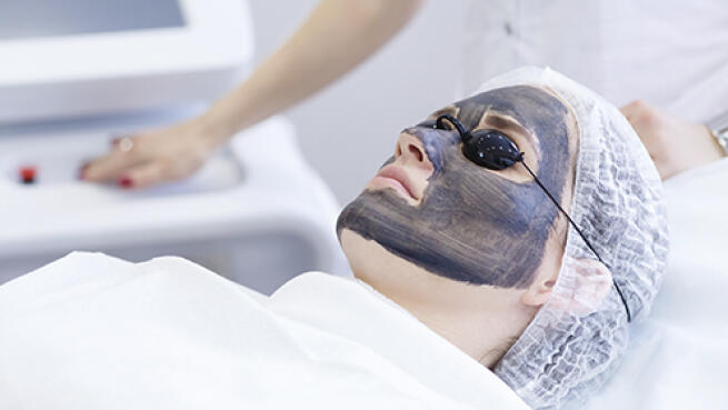 Rejuvenecimiento facial por láser con carbón activo